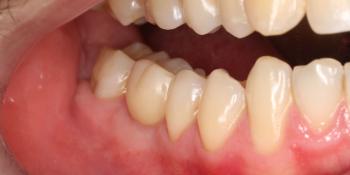 Восстановление жевательного зуба имплантатом Osstem + коронка фото после лечения