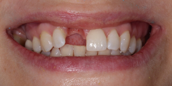 Жалоба на отсутствие переднего зуба фото до лечения