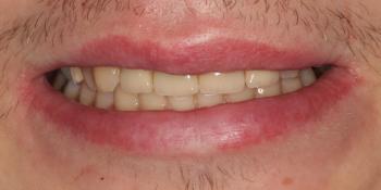Восстановление центральных зубов верхней челюсти коронками на основе диоксида циркония фото после лечения