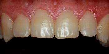 Эстетические реставрации передних зубов фото после лечения