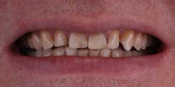 Цельнокерамические виниры на передние зубы без депульпирования зубов фото до лечения