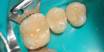 Результат лечения глубокого кариеса зуба 1.5 фото после лечения
