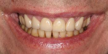 Восстановление передних зубов верхней челюсти фото после лечения