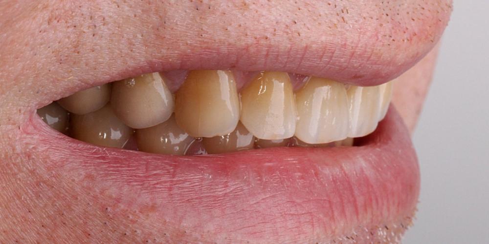 Цельнокерамические виниры на передние зубы без депульпирования зубов