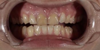 Восстановление резцов верхней челюсти керамическими винирами E.max и отбеливание Zoom3 фото до лечения