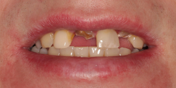 Восстановление центральных зубов верхней челюсти коронками на основе диоксида циркония фото до лечения