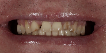 Установка 2 иплантантов Straumann и восстановление формы, функции и эстетики зубов винирами фото до лечения