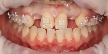Восстановление боковых резцов верхней челюсти фото до лечения