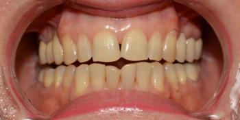 Неудовлетворительная эстетика двух передних нижних центральных зубов фото до лечения