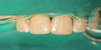 Результат лечение глубокого кариеса двух передних зубов за один прием фото после лечения
