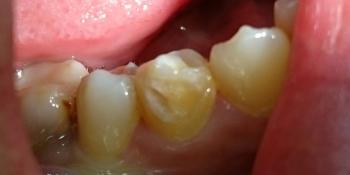 Лечение кариеса зуба 4.4, материал Estelite фото до лечения