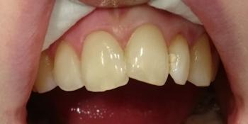 Восстановление анатомической формы 2.1 зуба материалом Estelite фото после лечения