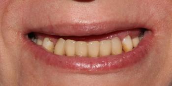 Протезирование условно-съёмными протезами на верхней челюсти (балочное соединение на 4 имплантатах) фото до лечения