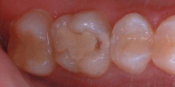 Замена пломбы и эстетическая реставрация жевательного зуба фото до лечения