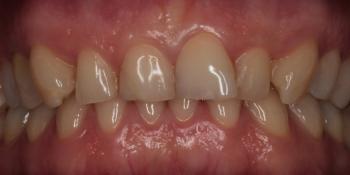 Удлинение коронковой части передних зубов фото до лечения