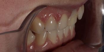 Эстетическое преобразование передних зубов верхней челюсти фото до лечения