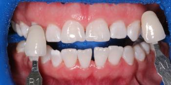 Комплексная чистка + отбеливание ZOOM 4, результат до и после фото после лечения