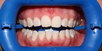 Результат отбеливания зубов с использованием системы Zoom-3 фото после лечения