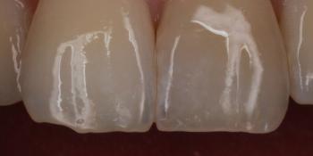 Оперативное устранения скола центрального зуба фото после лечения