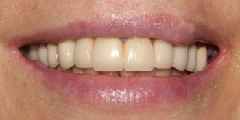 Результат протезирования на верхней челюсти металлокерамическими коронками фото после лечения