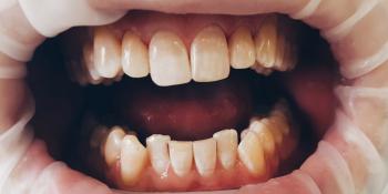 Корректировка формы резцов верхней челюсти керамическими винирами E.Max фото после лечения