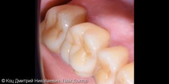 Керамическая непрямая реставрация Emax на зубы 15, 16, 17 фото после лечения