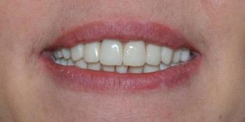 Восстановление формы и эстетики всех зубов коронками и винирами Е-max фото после лечения