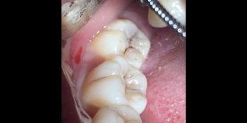 Жалобы на чувствительность нижних правых моляров на сладкое фото до лечения