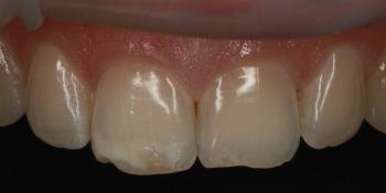 Цельнокерамические виниры E-max на передние зубы фото до лечения