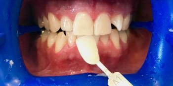 Пациент обратился с жалобами на некрасивый цвет зубов фото после лечения