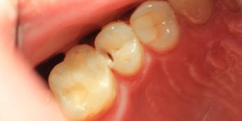 Результат лечения глубокого кариеса зуба 1.5 фото до лечения