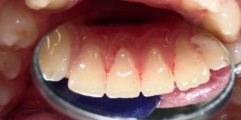 Проведена профессиональная гигиена полости рта, ультразвук, airflow, полировка фото после лечения