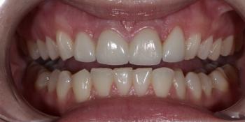 Восстановление резцов верхней челюсти керамическими винирами E.max и отбеливание Zoom3 фото после лечения
