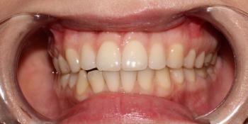 Фото результата отбеливание зубов с помощью системы Zoom 3 фото до лечения