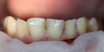 Результат лечения среднего кариеса зуба 1.1 фото до лечения
