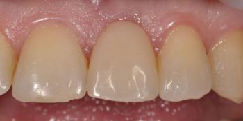 Восстановление зуба с помощью вживления имплантата и коронки фото после лечения