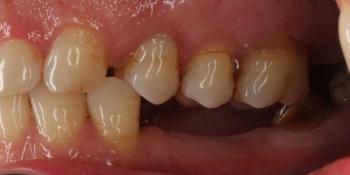 Имплантация трех зубов подряд, м/к коронки фото до лечения