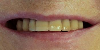 Полное протезирование верхней и нижней челюсти несъемными мостовидными протезами фото до лечения