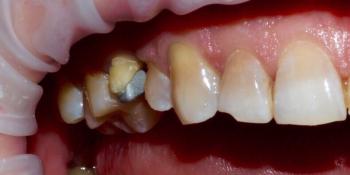 Неудовлетворительная эстетика зубов и выпадение старой металлокерамической коронки фото до лечения